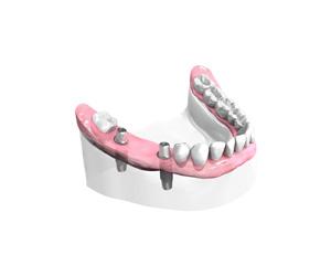 Remplacer plusieurs dents absentes ou abîmées - Dentiste