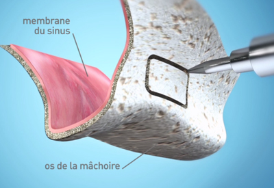 Chirurgie pré implantaire - sinus lift