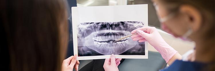 Endodontie Epinay sur Seine