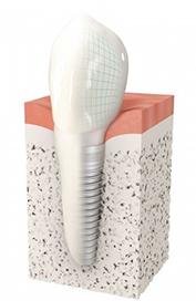 Implant Dentaire Epinay sur Seine